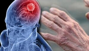 Reasons for Parkinson's disease